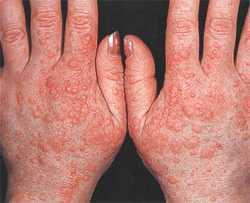 Симптомы и лечение аллергии на холодную воду