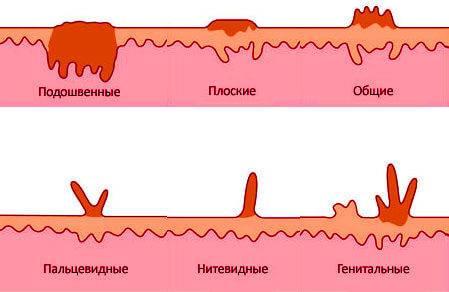 Папиллома наружного слухового прохода