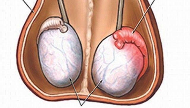 Причины нарушения морфологии головки сперматозоидов
