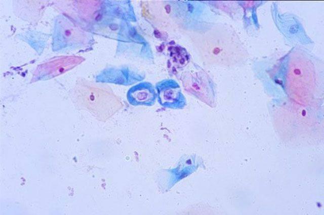 Что делать при папилломавирусе и что это — днк впч 51 типа у женщин? особенности лечения вируса папилломы человека