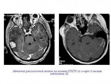 Лечение метастазирующей меланомы