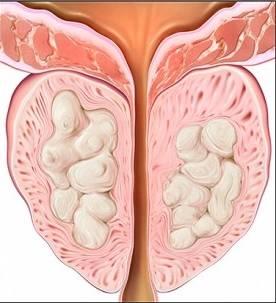 Киста предстательной железы у мужчин лечение — простатит