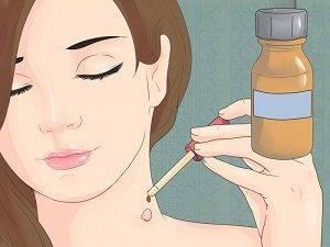 Почему появляются папилломы на шее и как от них избавиться