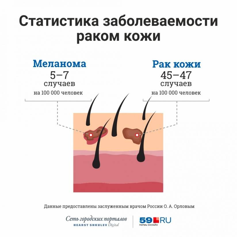 Меланома кожи: прогнозы жизни после операции