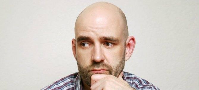 Самые вероятные 10 причин почему мужчины лысеют