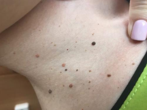 Появляются мелкие красные точки по всему телу – что это значит?