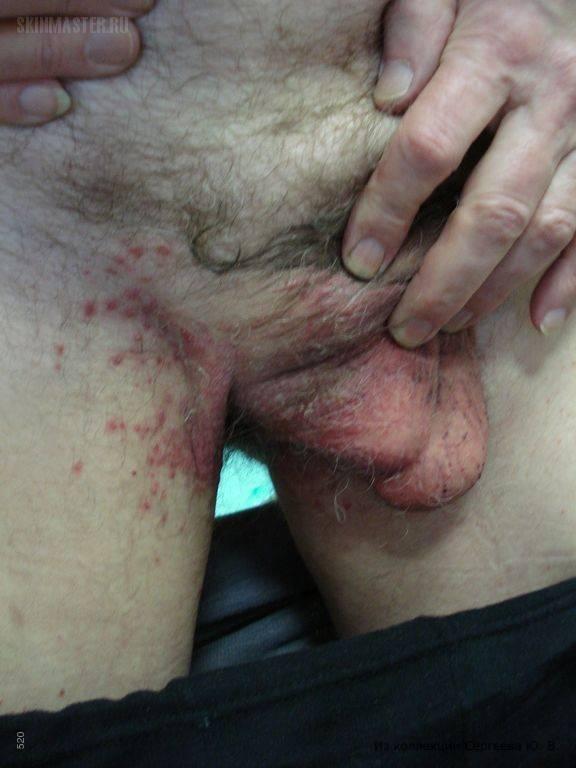 Красные пятна на головке члена у мужчин