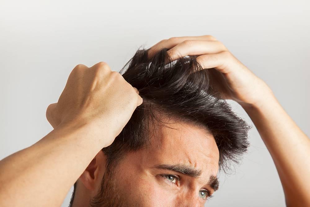 Алопеция у мужчин на бороде: причины, диагностика, лечение