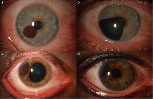 Меланома сетчатки глаза: каков прогноз заболевания?