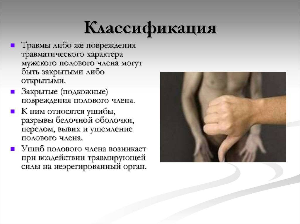 Перелом полового члена: механизм травмы, принцип лечения