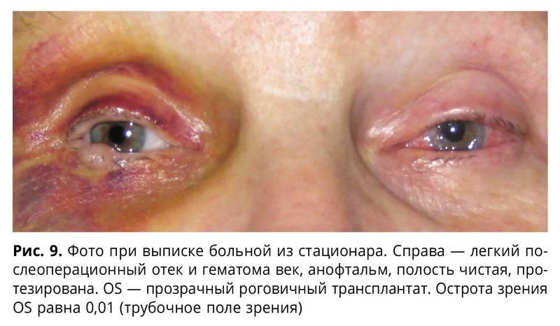 Виды меланомы глаза, клинические признаки и методы лечения