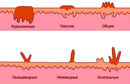 Лечение папиллом в кишечнике, причины их появления