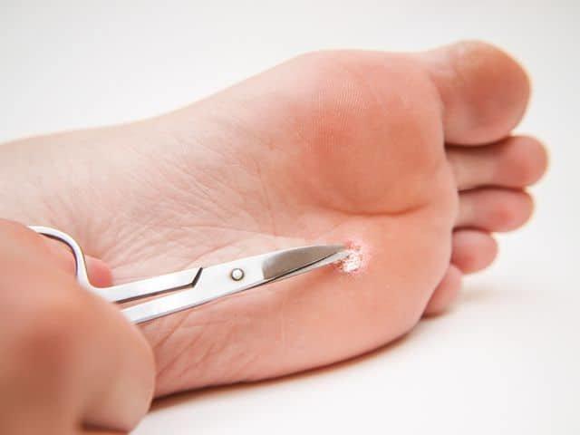 Как удалить мозоль на ноге между пальцами? аптечные средства и народные методы лечения