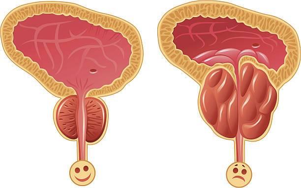 Где находится простата, её строение и функции