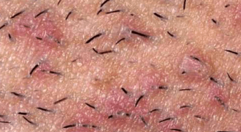 Раздражение в паху у мужчин после бритья: причины и профилактика