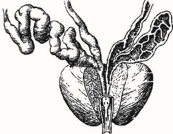 Острый и хронический бактериальный простатит: причины, симптомы и лечение