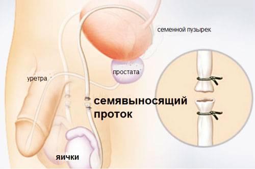 Эндоваскулярные операции: суть лечения, плюсы и минусы, сферы применения