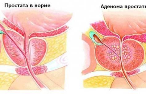 К какому врачу обращаться при аденоме простаты