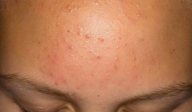 Особенности возникновение и лечения конглобатных (шаровидных) угрей