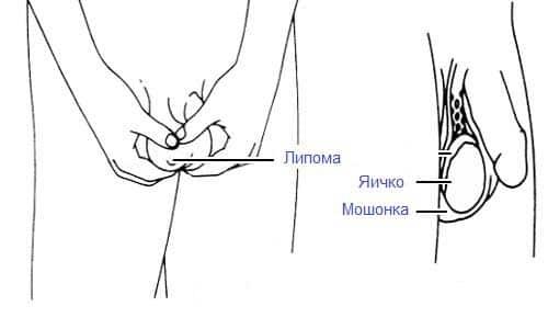 Атерома на мошонке: причины, симптомы и методы удаления