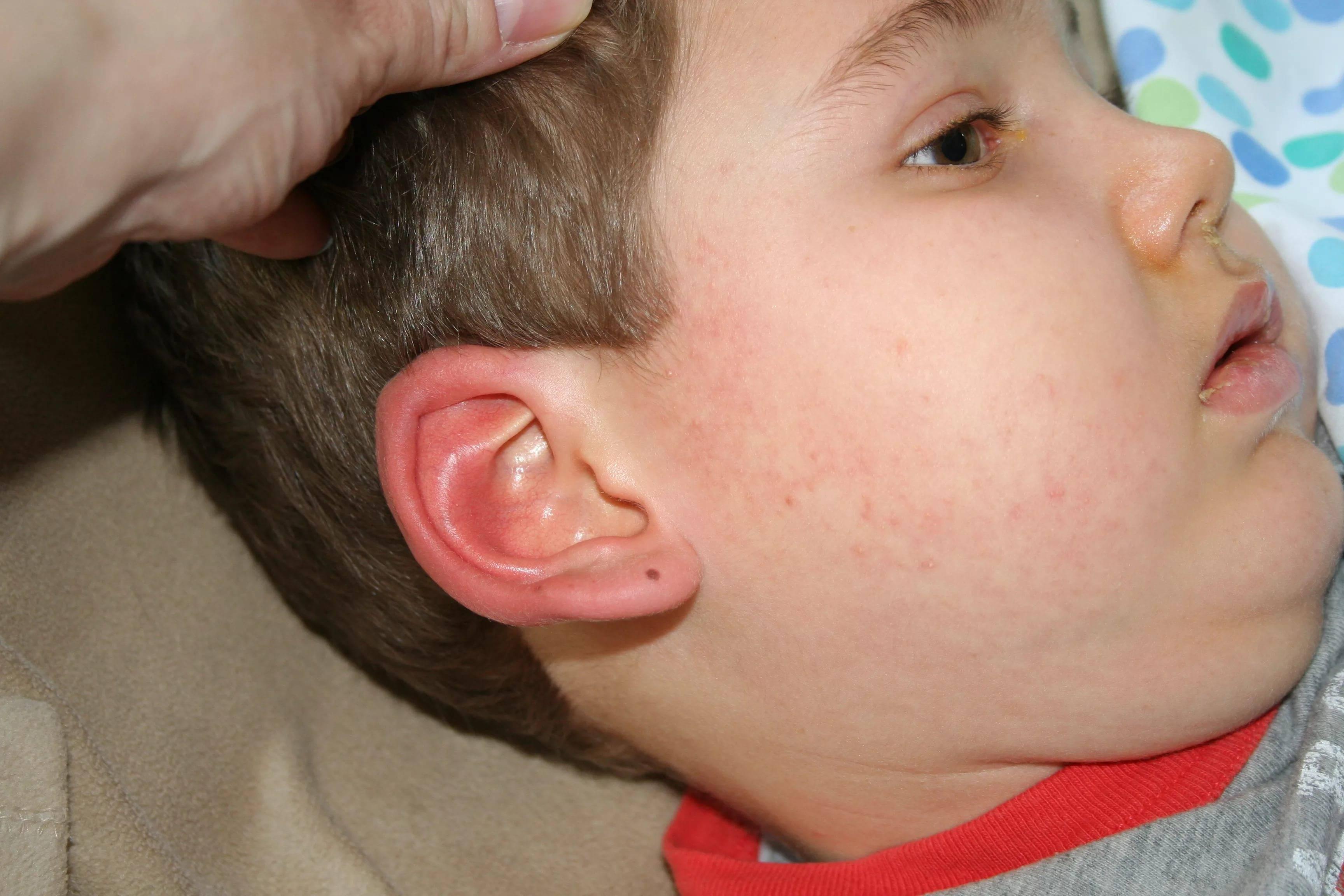 Причины появления и методы лечения фурункулов у детей − поможет ли ребенку домашнее алоэ?
