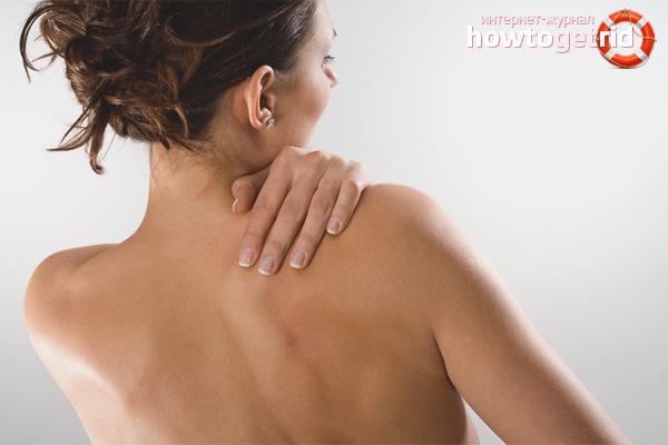 Сыпь на спине – что может быть причиной, и можно ли от нее избавиться?