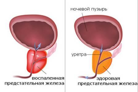 Особенности абактериального простатита