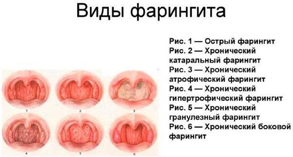 Симптомы и лечения острого хронического фарингита у взрослых