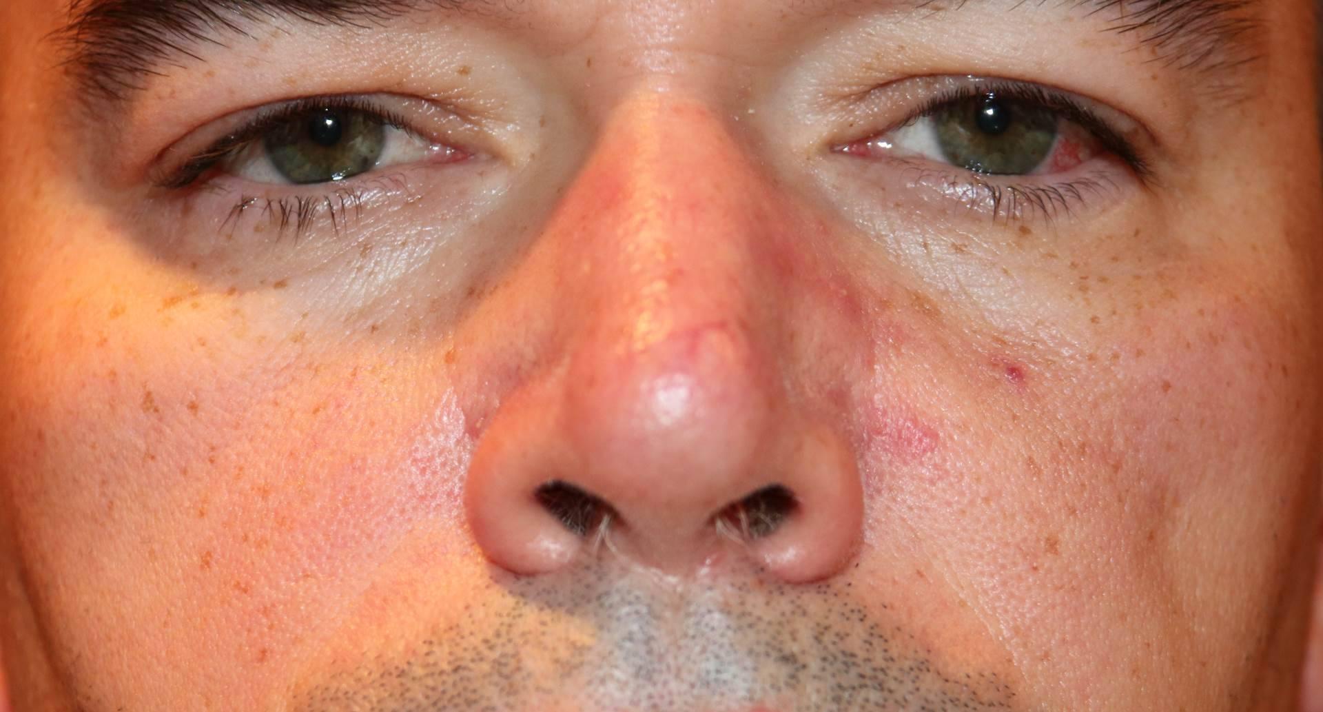 Витамины для кожи лица от прыщей: какие помогают, отзывы