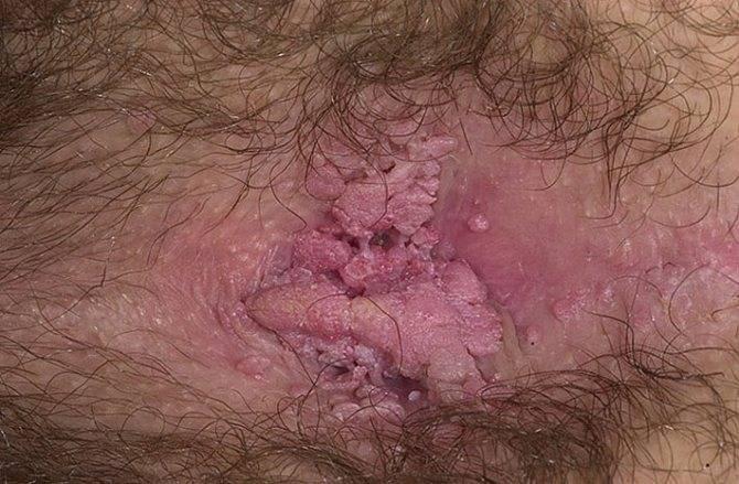 Папилломавирус 11 типа у женщин: особенности протекания болезни