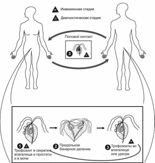 Трихомониаз: признаки, пути передачи, течение, чем опасен, диагностика, как лечить