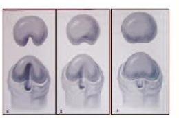 Операция при фимозе: когда показана, методы, проведение, восстановление после