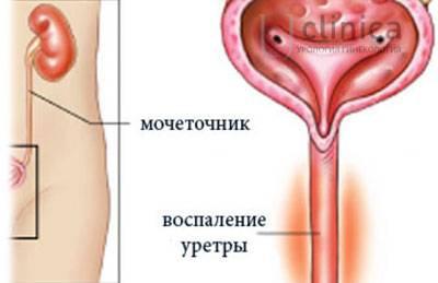 Жжение после семяиспускания у мужчин: причины, симптомы, лечение