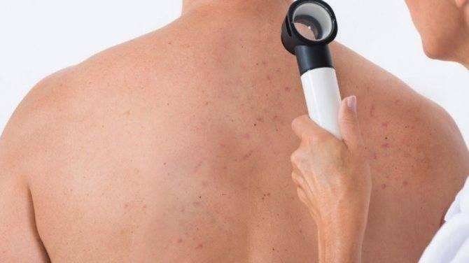 Почему возникают прыщи на спине, лице и ногах после массажа и требуют ли они лечения?
