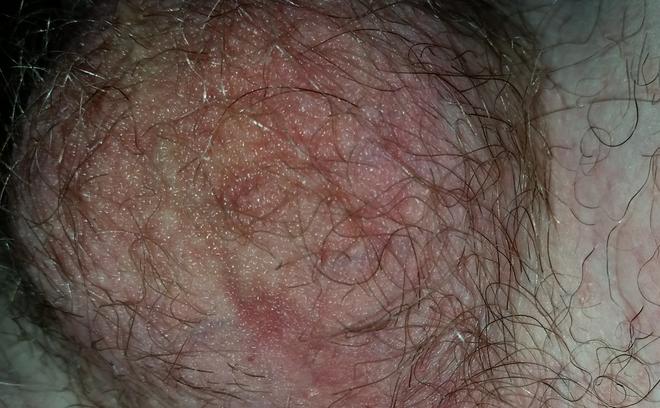 Причины, диагностика и лечение шелушений на коже пениса у мужчин
