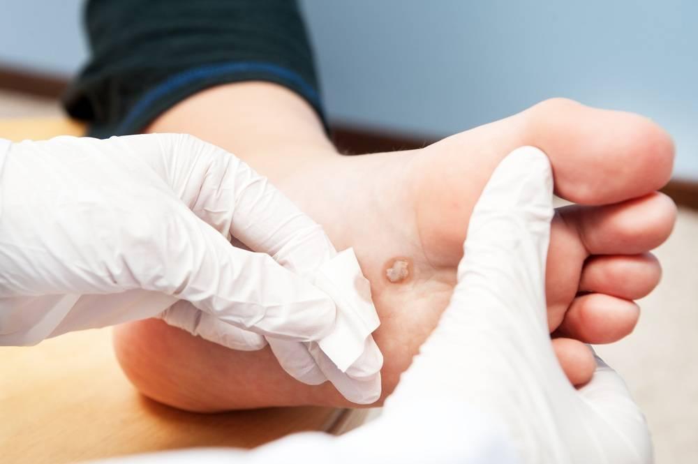 Папилломы на ступне — причины появления и способы лечения