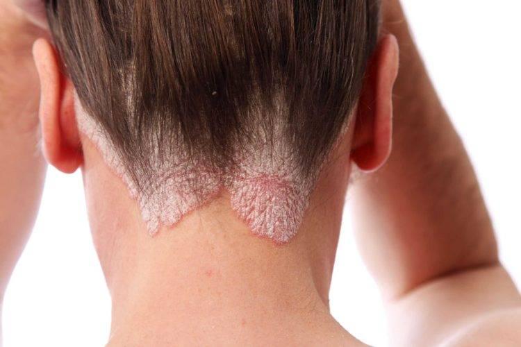 Папиллома на голове лечение — папиллома на голове