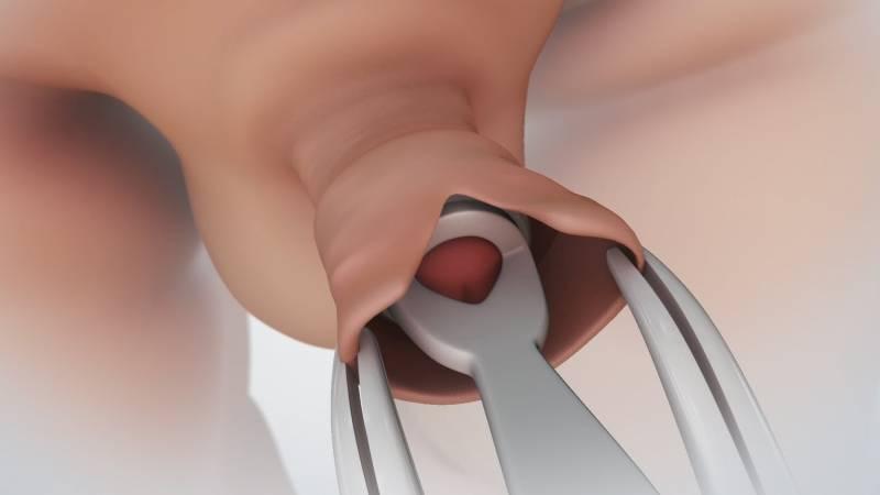 Какой врач лечит фимоз, к какому врачу доктору обратиться с фимозом