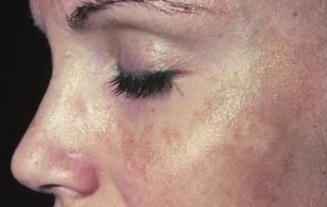 Как избавиться от пигментных пятен на лице: салонные процедуры, отбеливающие кремы и домашние маски
