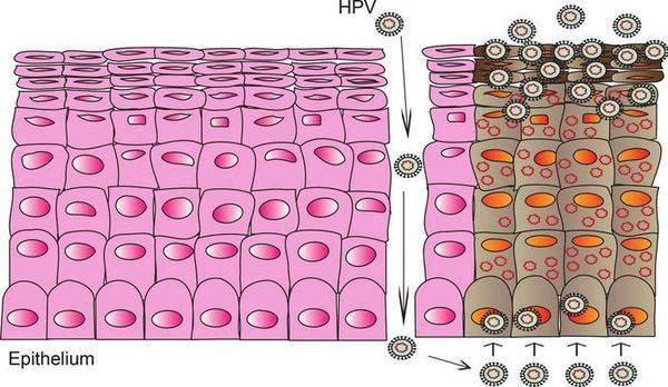 Плоскоклеточная папиллома — 5 методов лечения и последствия
