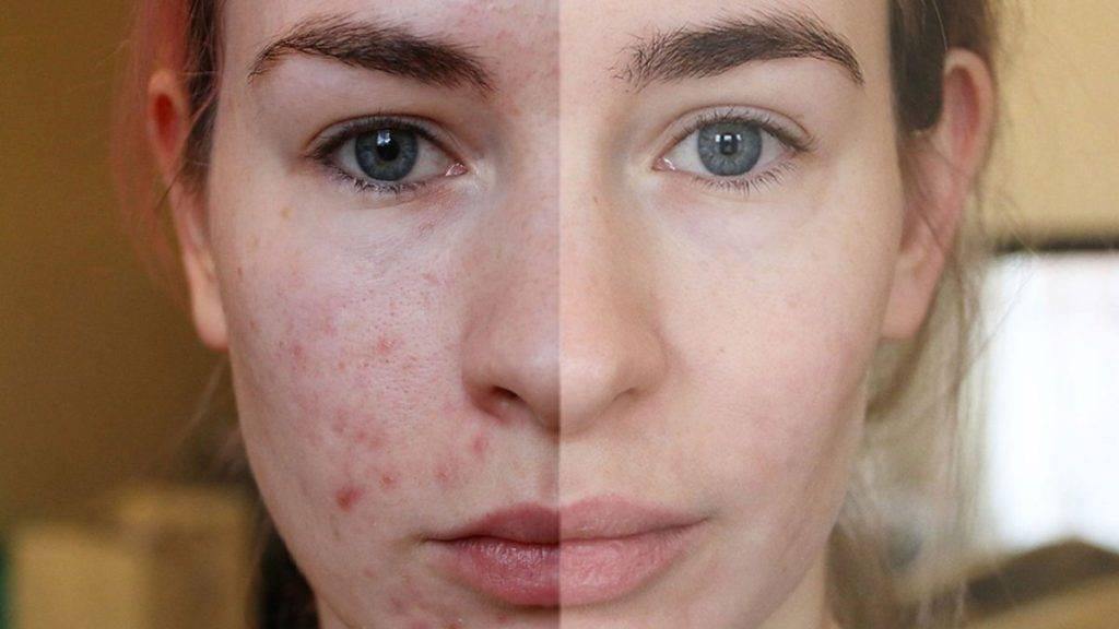 В чем преимущества уринотерапии для кожи лица?