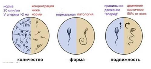 Морфология сперматозоидов как метод диагностики мужской репродуктивной функции