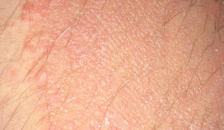 Причины шелушения кожи в интимном месте у мужчин и женщин и способы устранения данной проблемы