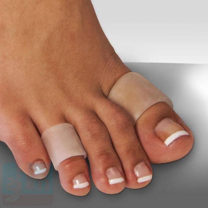 Традиционные и народные методы лечения мозоли между пальцев на ногах