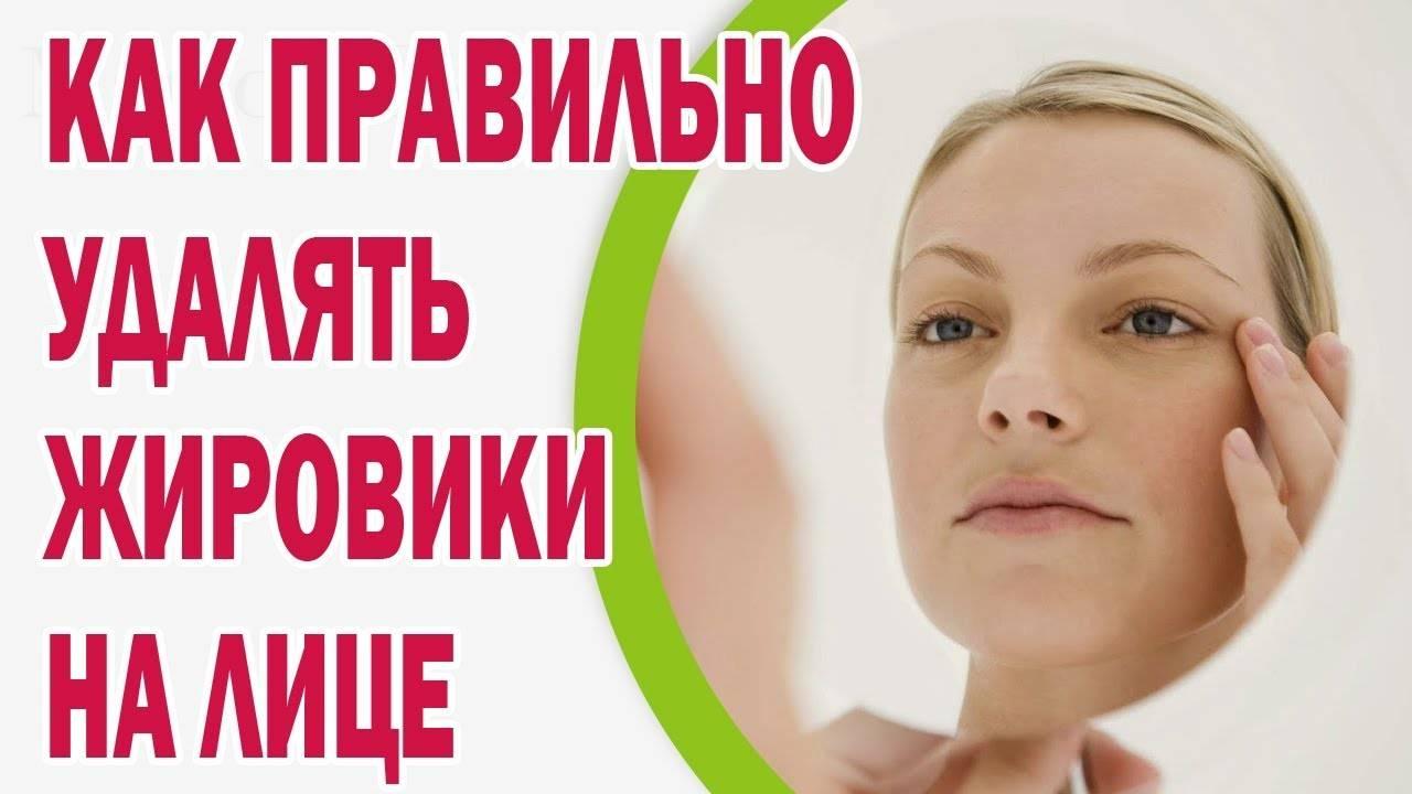 Как быстро и правильно удалять жировики на лице самому