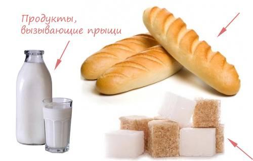 Прыщи от молока и молочных продуктов: могут ли быть акне от лактозы?