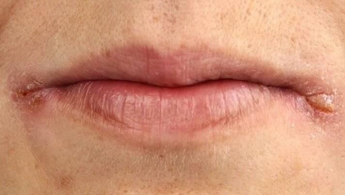 Заеды на губах