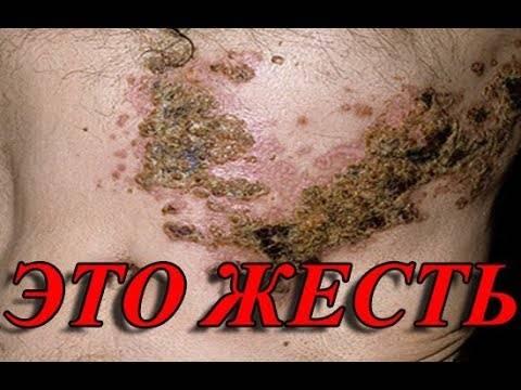 Можно ли повторно заболеть ветрянкой: мнения докторов е. о. комаровского, а. п. продеуса и доктора а. л. мясникова