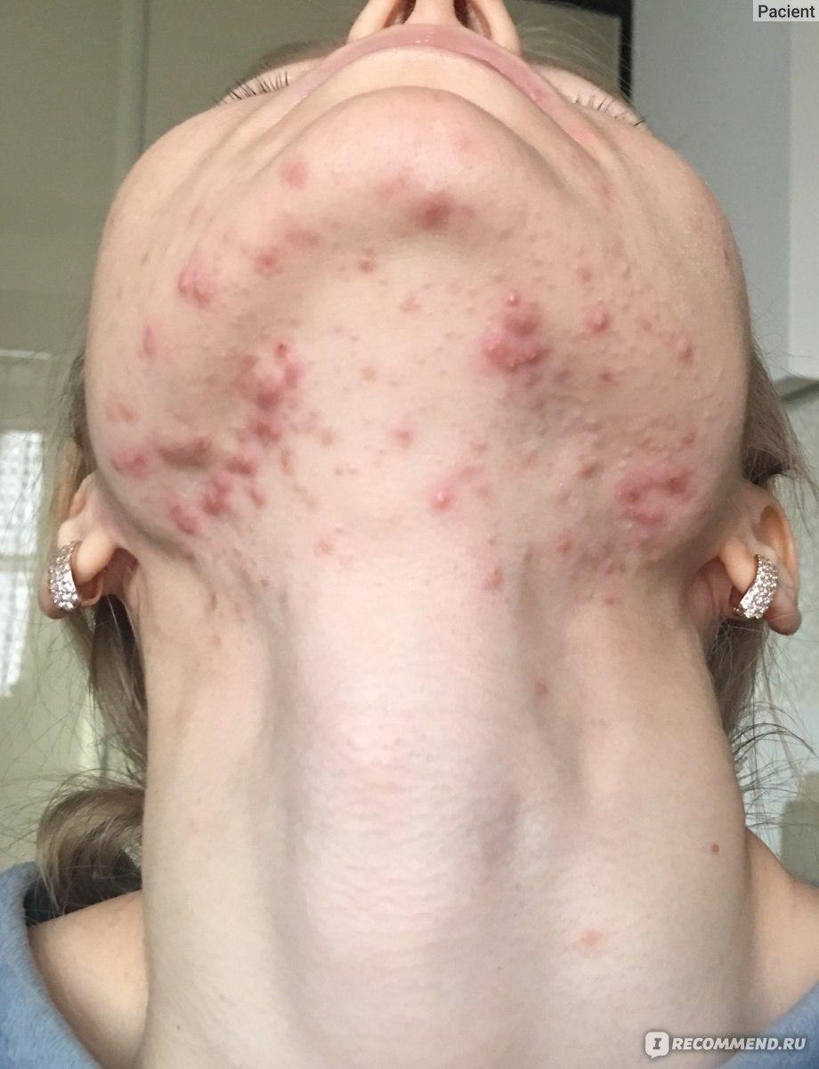 Прыщи на спине у женщины: причины и лечение