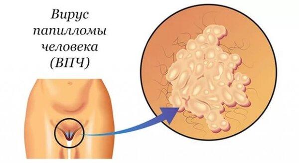 Особенности лечения впч 66 типа у женщин: что это такое и как бороться с вирусом?